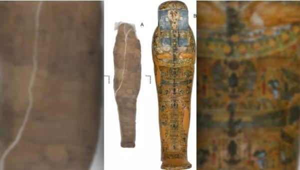 mumie în tratamentul varicozei
